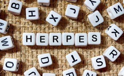 Herpes written in scrabble blocks image