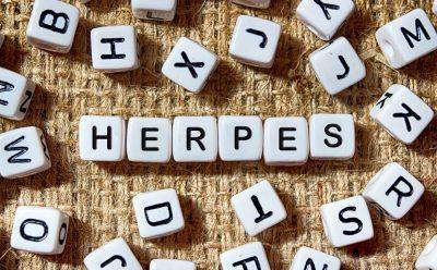 Herpes written in scrabble blocks image